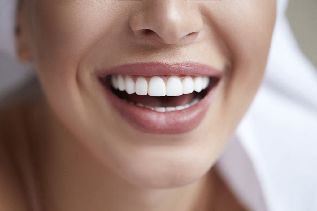 The Dental Veneer Process: What To Expect