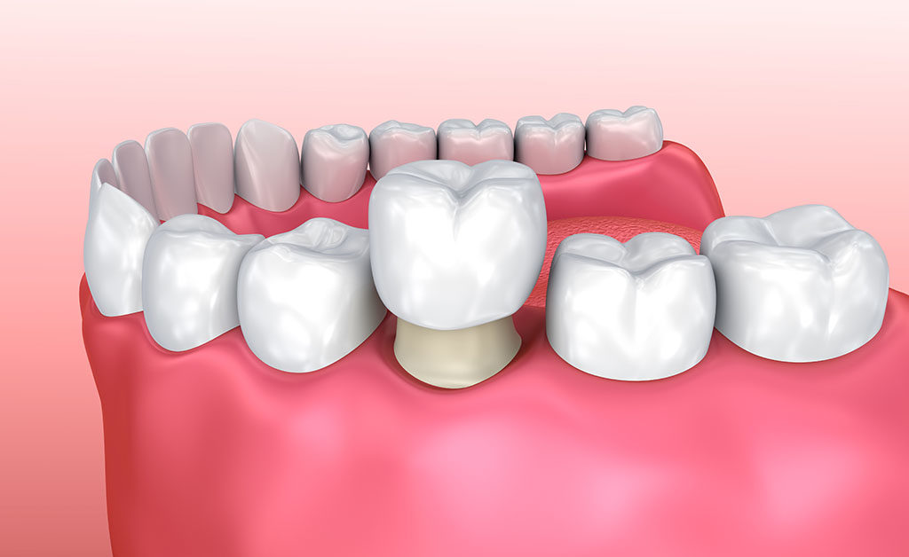 Why Choose a Dental Crown vs. Pulling Teeth