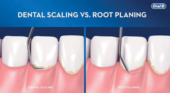 What is Periodontitis, and What Special Cleanings are Needed to Manage It?